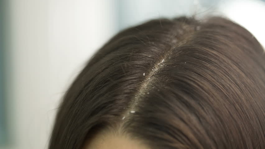 Remove dandruff  to get long and strong hair with coconut oil