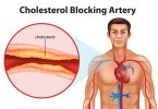 Cholesterol level, high cholesterol effects on body