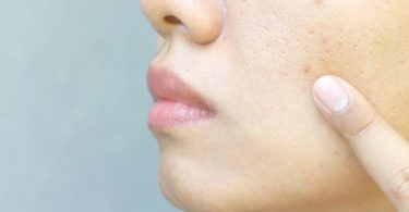 Home Remedies For Open Pores, Causes Of Open Pores